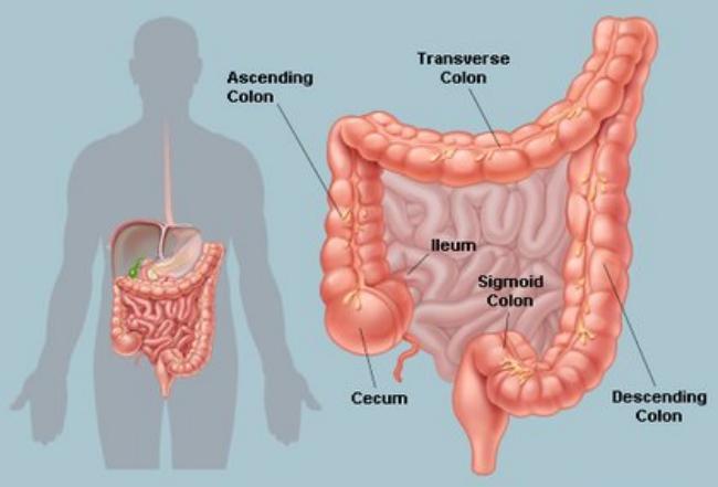 Extreme Constipation Symptoms