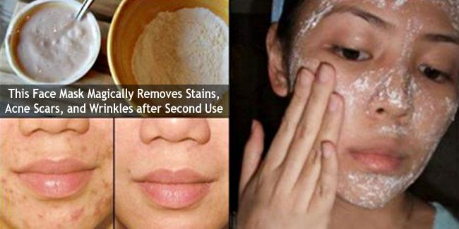 Homemade Face Mask for Acne Scars and Wrinkles
