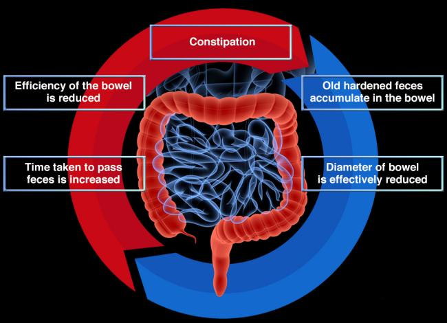 Medical Conditions that Cause Constipation