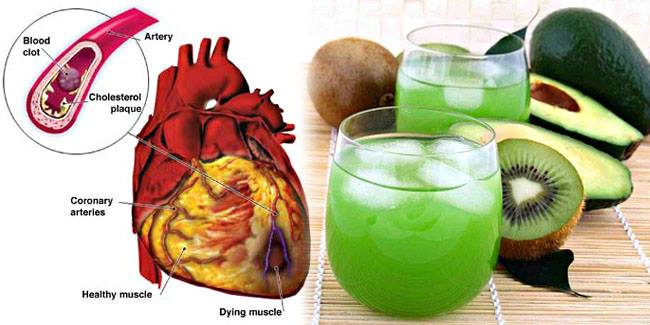 Homemade Drink to Prevent a Stroke Naturally