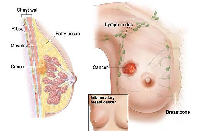 Metastatic Breast Cancer Treatment