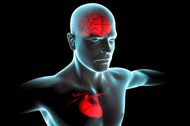 Signs and Symptoms after a Stroke