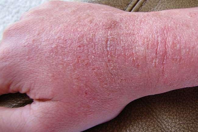 Ways To Treat Eczema On Hands