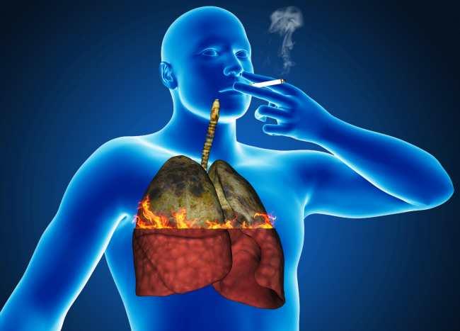 Lung Damage from Smoking